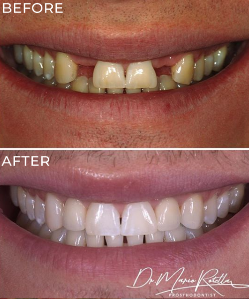 Dental Implants Yorkville